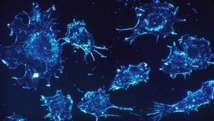 В Новосибирске откроется производство отечественного препарата от рака