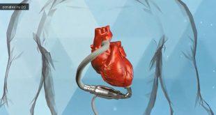 Систему вспомогательного кровообращения нового типа создализеленоградские ученые